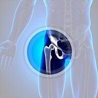 Hip Surgery Circle